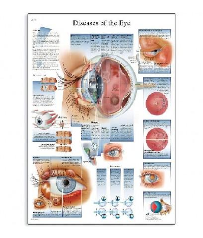 3B Scientific : 3BSVR1231L* โปสเตอร์รูปภาพ Diseases of The Eye Anatomical Chart