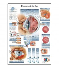 3B Scientific : 3BSVR1231L* โปสเตอร์รูปภาพ Diseases of The Eye Anatomical Chart